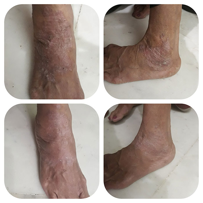 Cure for Psoriasis